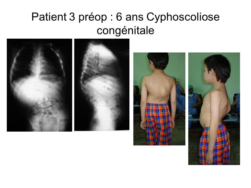Patient 3 préop : 6 ans Cyphoscoliose congénitale