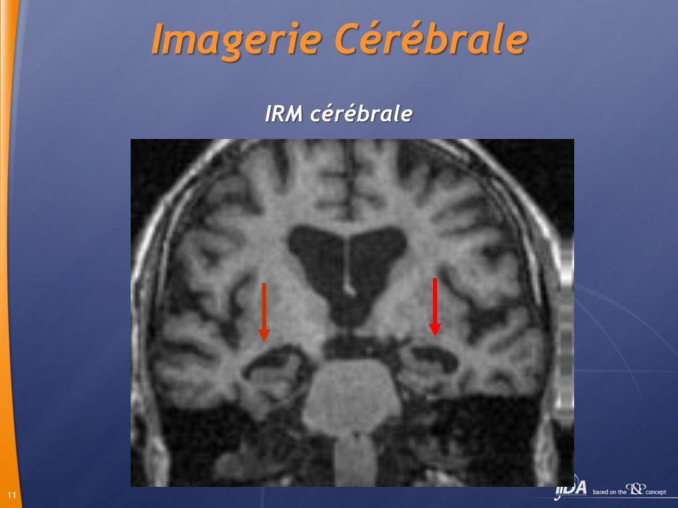 Imagerie Cérébrale IRM cérébrale