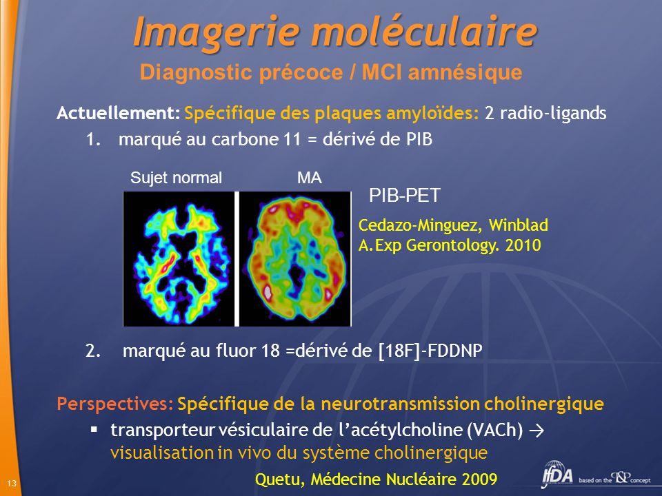 Diagnostic précoce / MCI amnésique
