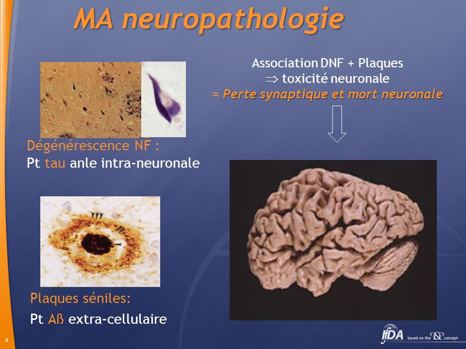 MA neuropathologie Dégénérescence NF : Pt tau anle intra-neuronale