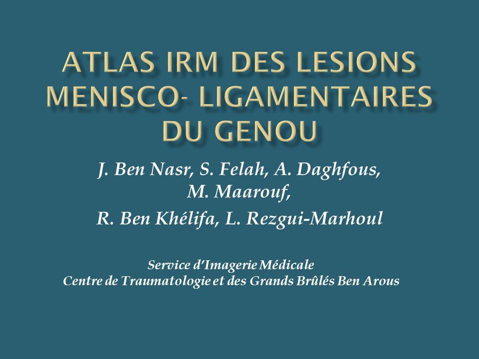 ATLAS IRM DES LESIONS MENISCO- LIGAMENTAIRES DU GENOU