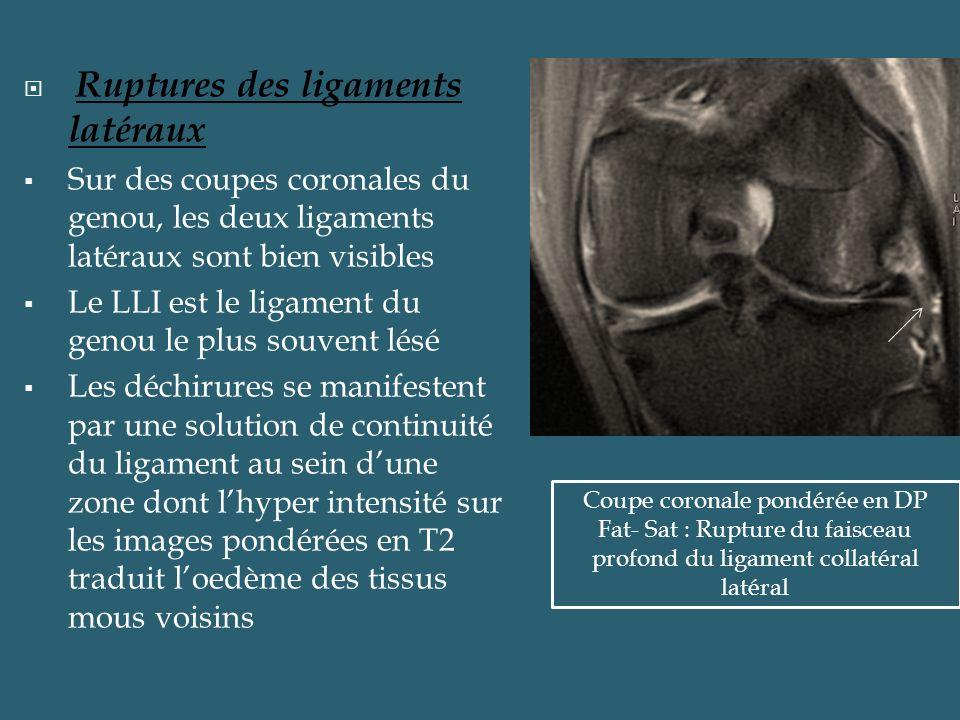 Ruptures des ligaments latéraux