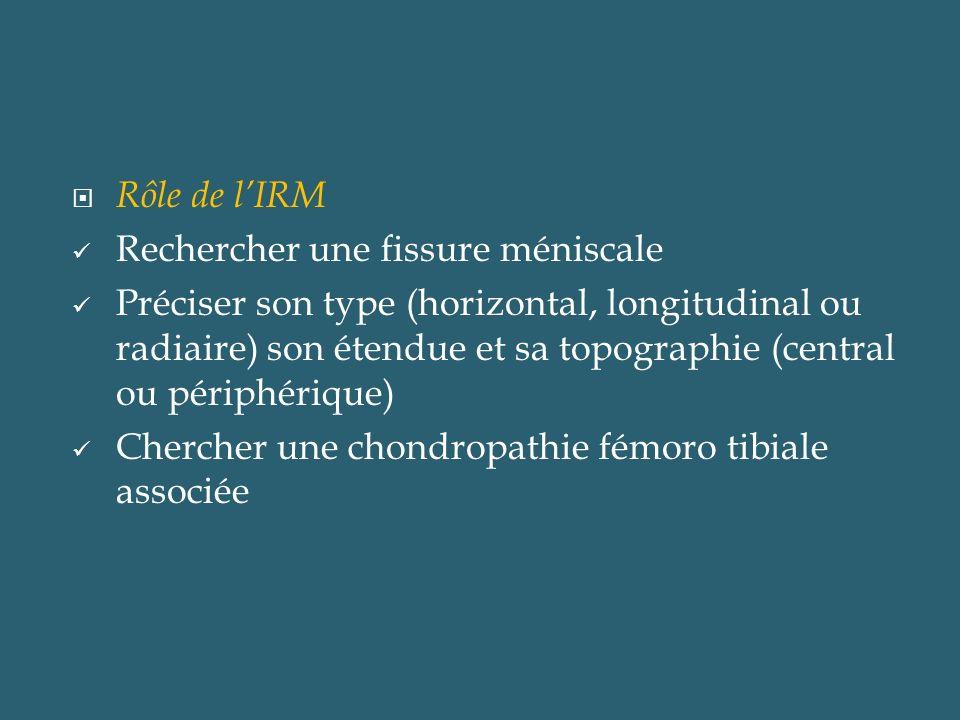 Rôle de l'IRM Rechercher une fissure méniscale.