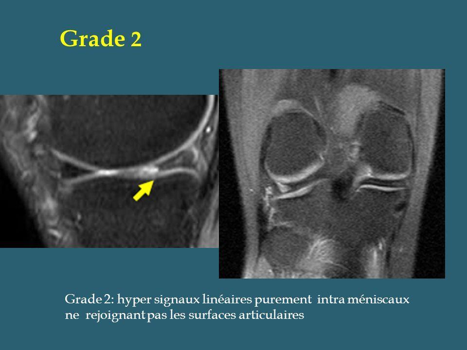 Grade 2 Grade 2: hyper signaux linéaires purement intra méniscaux ne rejoignant pas les surfaces articulaires.