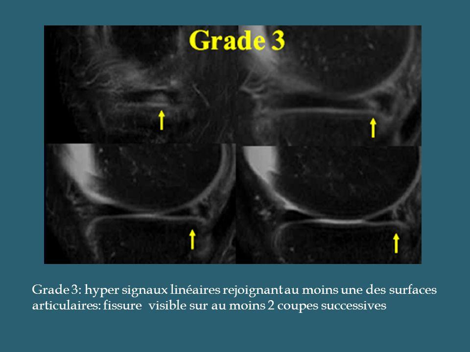 Grade 3: hyper signaux linéaires rejoignant au moins une des surfaces articulaires: fissure visible sur au moins 2 coupes successives