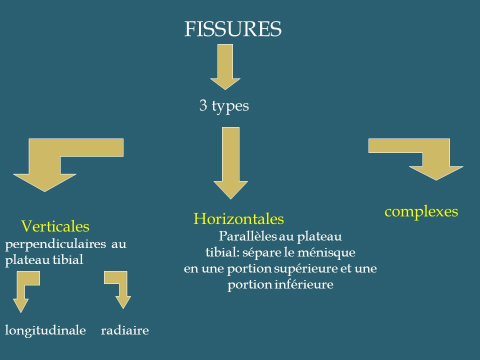 FISSURES 3 types complexes Horizontales Verticales