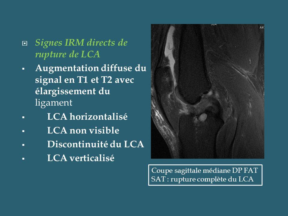 Signes IRM directs de rupture de LCA