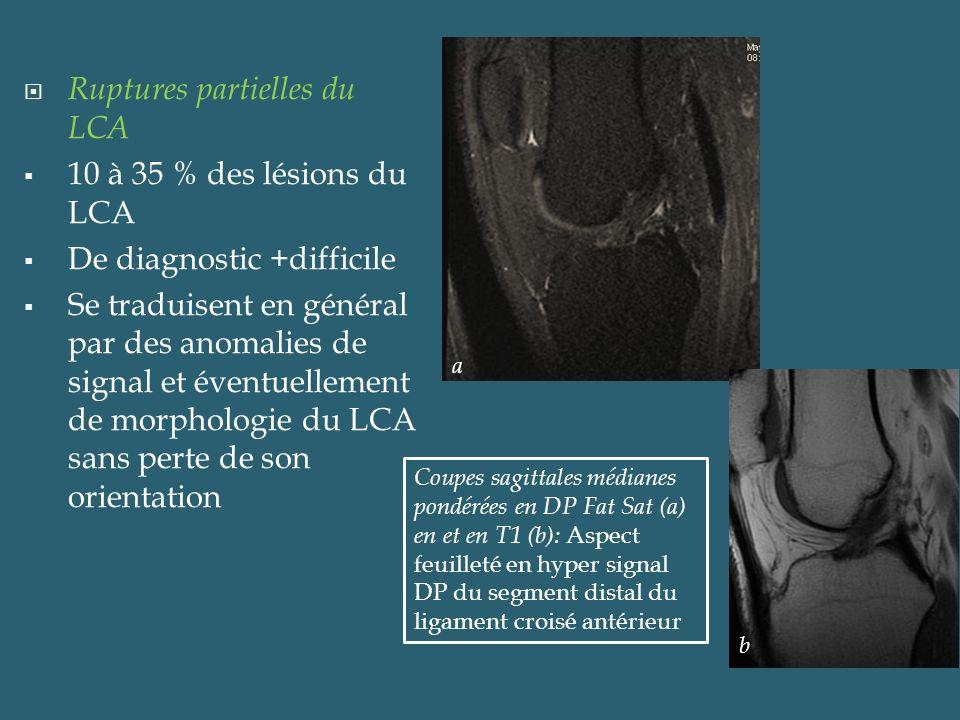 Ruptures partielles du LCA 10 à 35 % des lésions du LCA