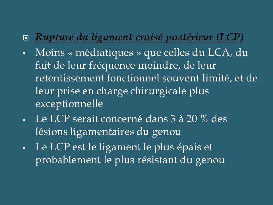 Rupture du ligament croisé postérieur (LCP)