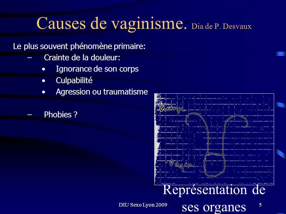 Causes de vaginisme. Dia de P. Desvaux