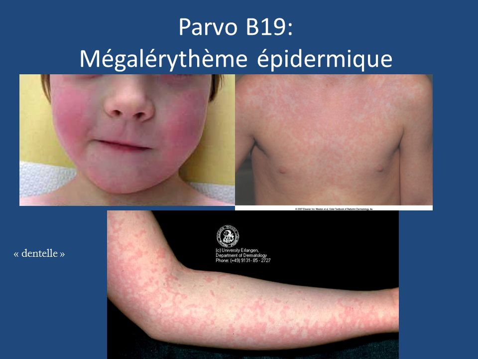 Parvovirus B19: Ein Infektionserreger mit vielen