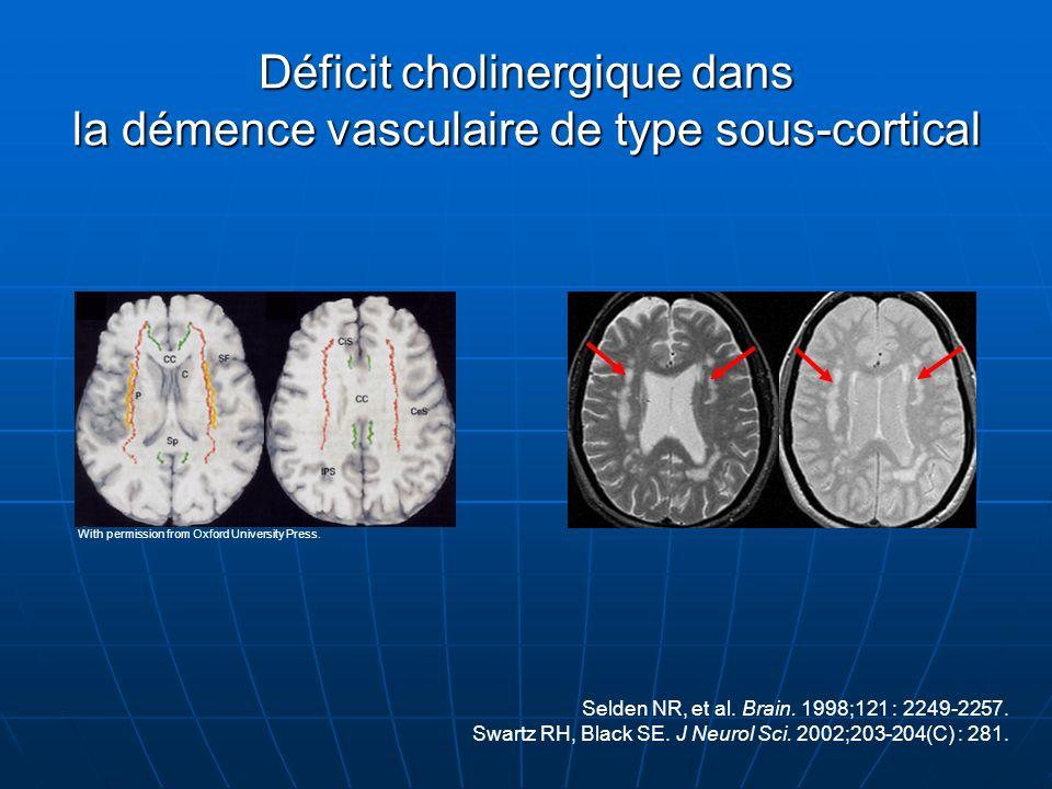 Déficit cholinergique dans la démence vasculaire de type sous-cortical