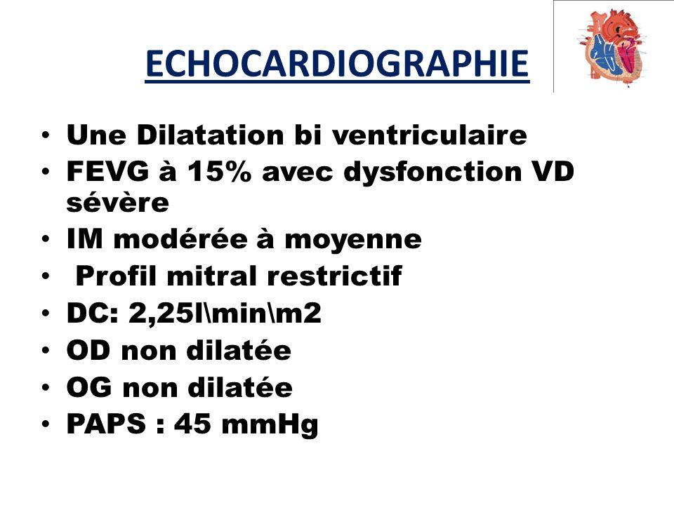 ECHOCARDIOGRAPHIE Une Dilatation bi ventriculaire