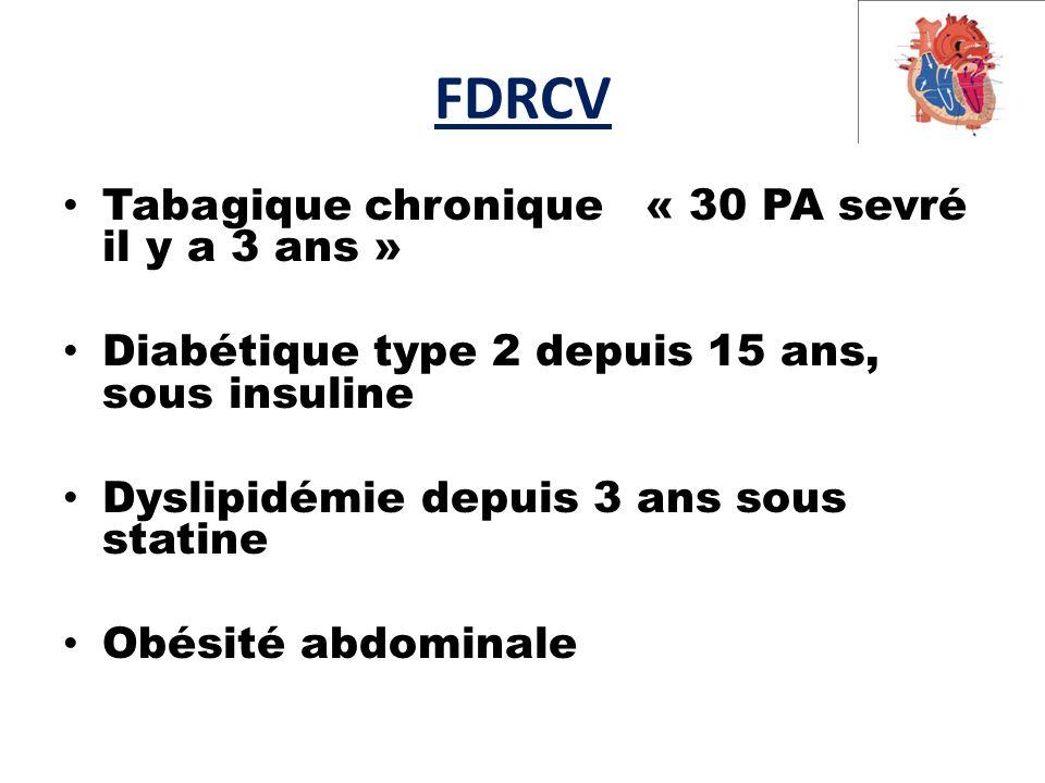 FDRCV Tabagique chronique « 30 PA sevré il y a 3 ans »