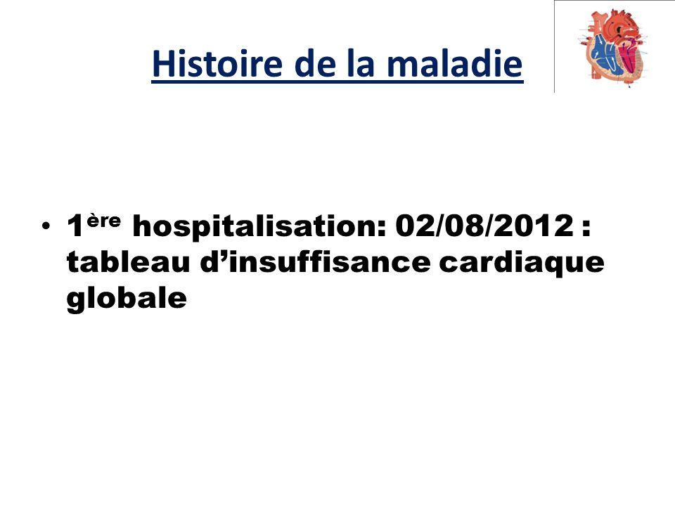 Histoire de la maladie 1ère hospitalisation: 02/08/2012 : tableau d'insuffisance cardiaque globale