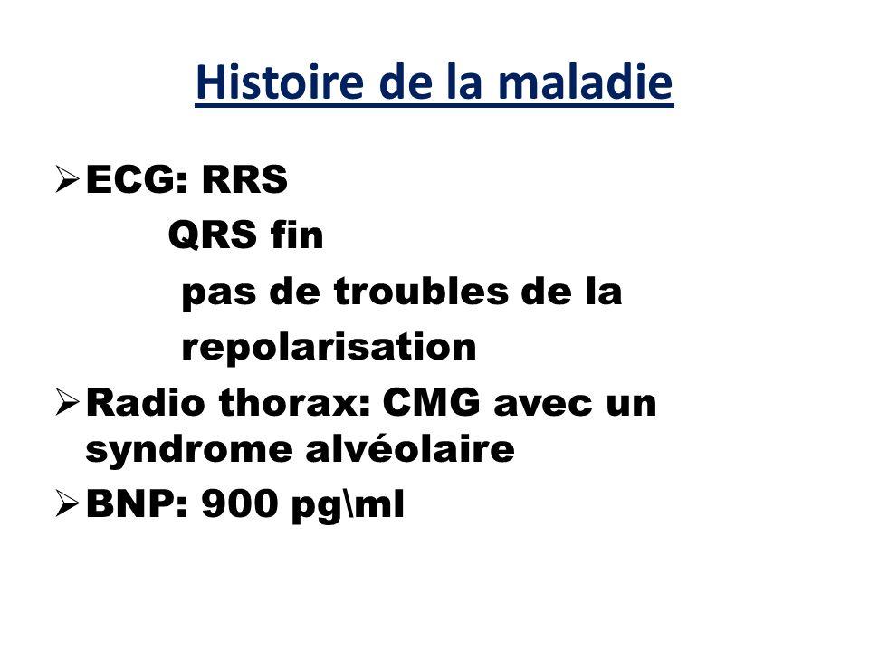 Histoire de la maladie ECG: RRS QRS fin pas de troubles de la