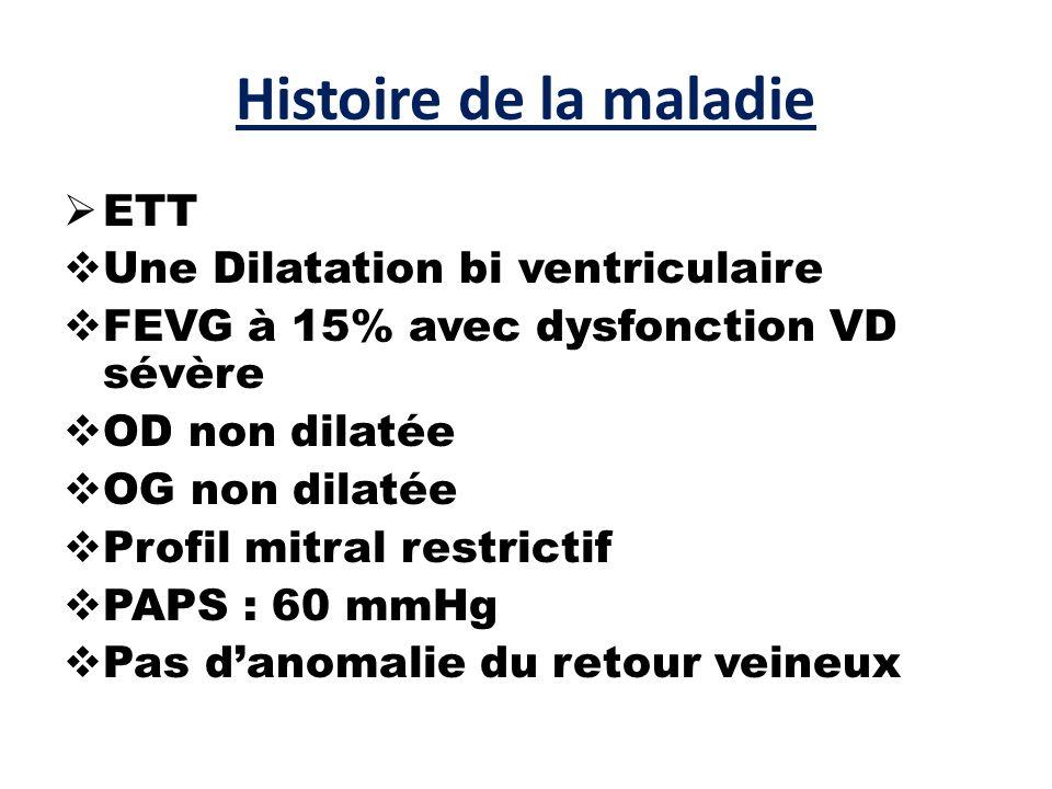 Histoire de la maladie ETT Une Dilatation bi ventriculaire