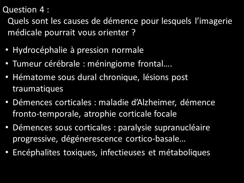 Question 4 : Quels sont les causes de démence pour lesquels l'imagerie médicale pourrait vous orienter