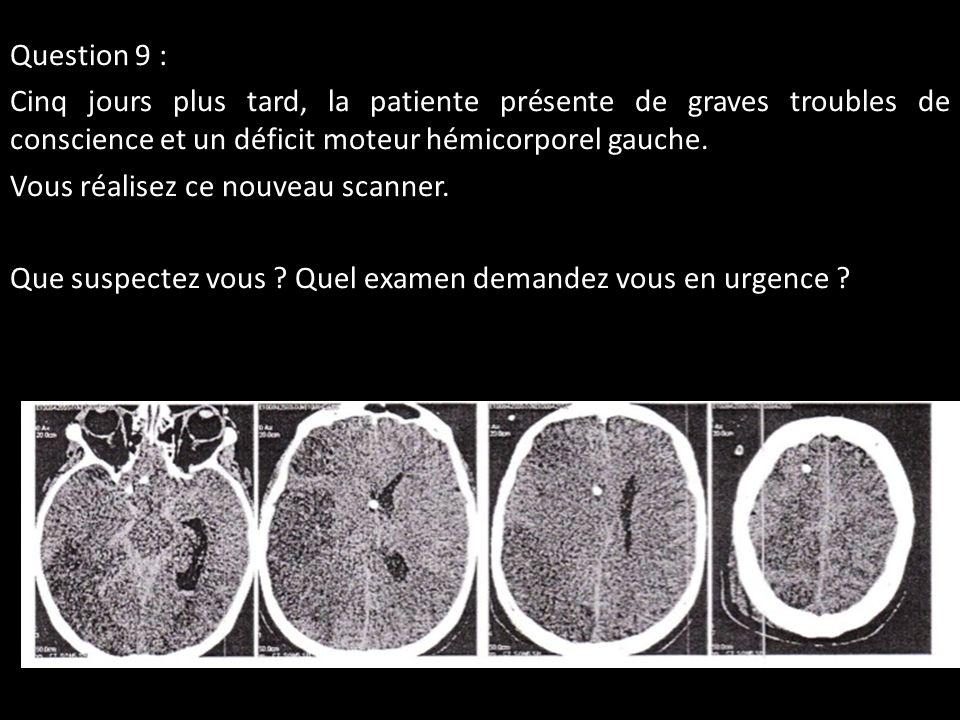Question 9 : Cinq jours plus tard, la patiente présente de graves troubles de conscience et un déficit moteur hémicorporel gauche.