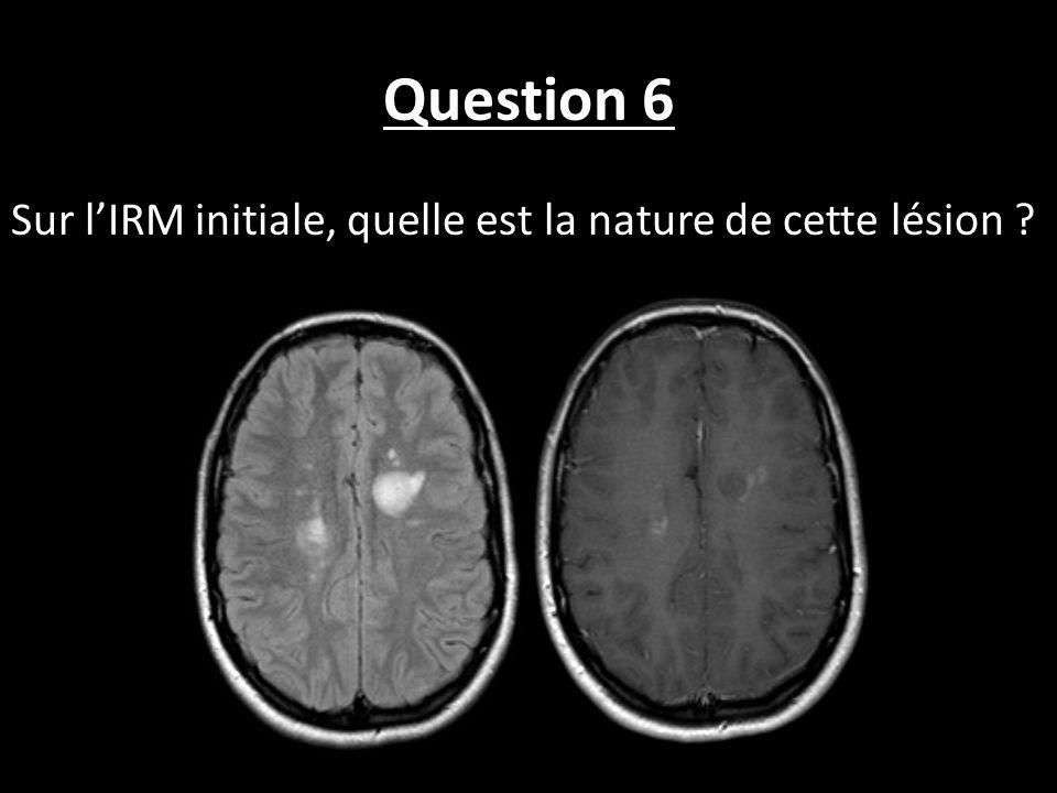 Question 6 Sur l'IRM initiale, quelle est la nature de cette lésion
