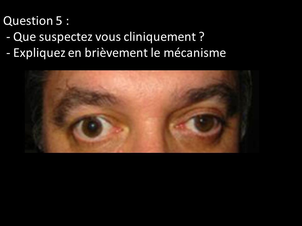 Question 5 : - Que suspectez vous cliniquement
