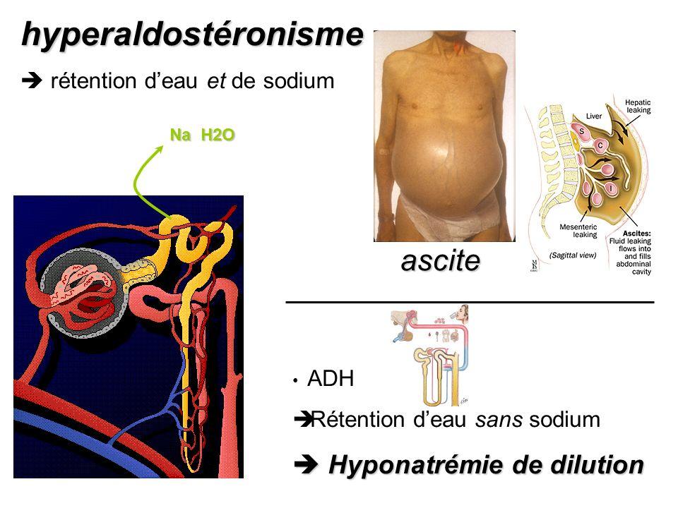 hyperaldostéronisme ascite  Hyponatrémie de dilution