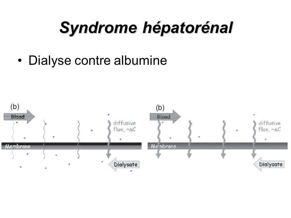 Syndrome hépatorénal Dialyse contre albumine