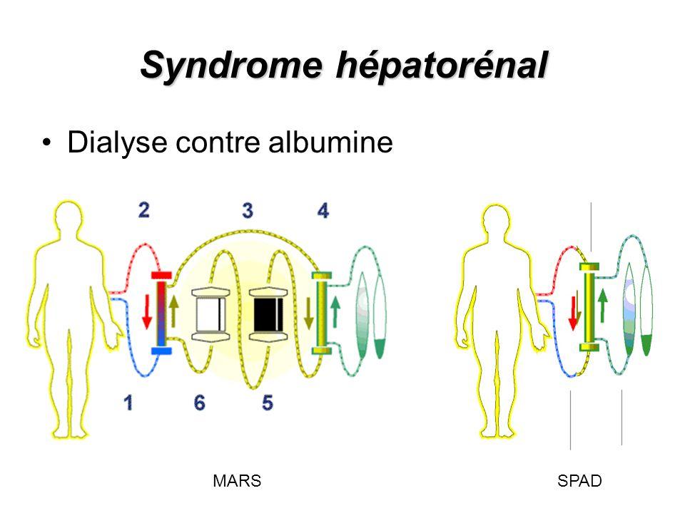 Syndrome hépatorénal Dialyse contre albumine.