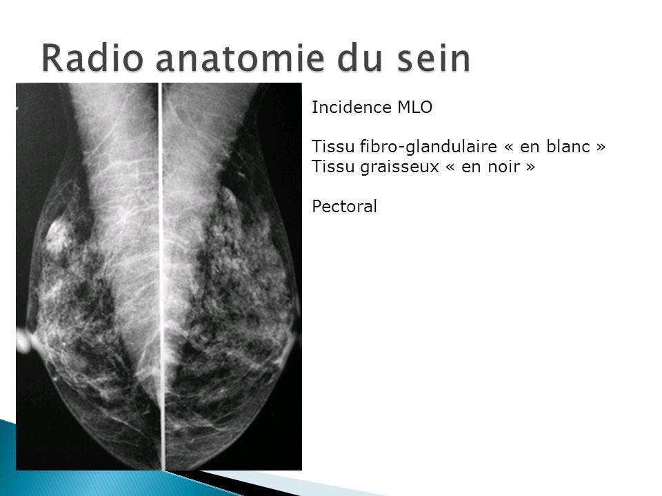 Beste Schläfenbein Anatomie Radiologie Galerie - Anatomie Ideen ...