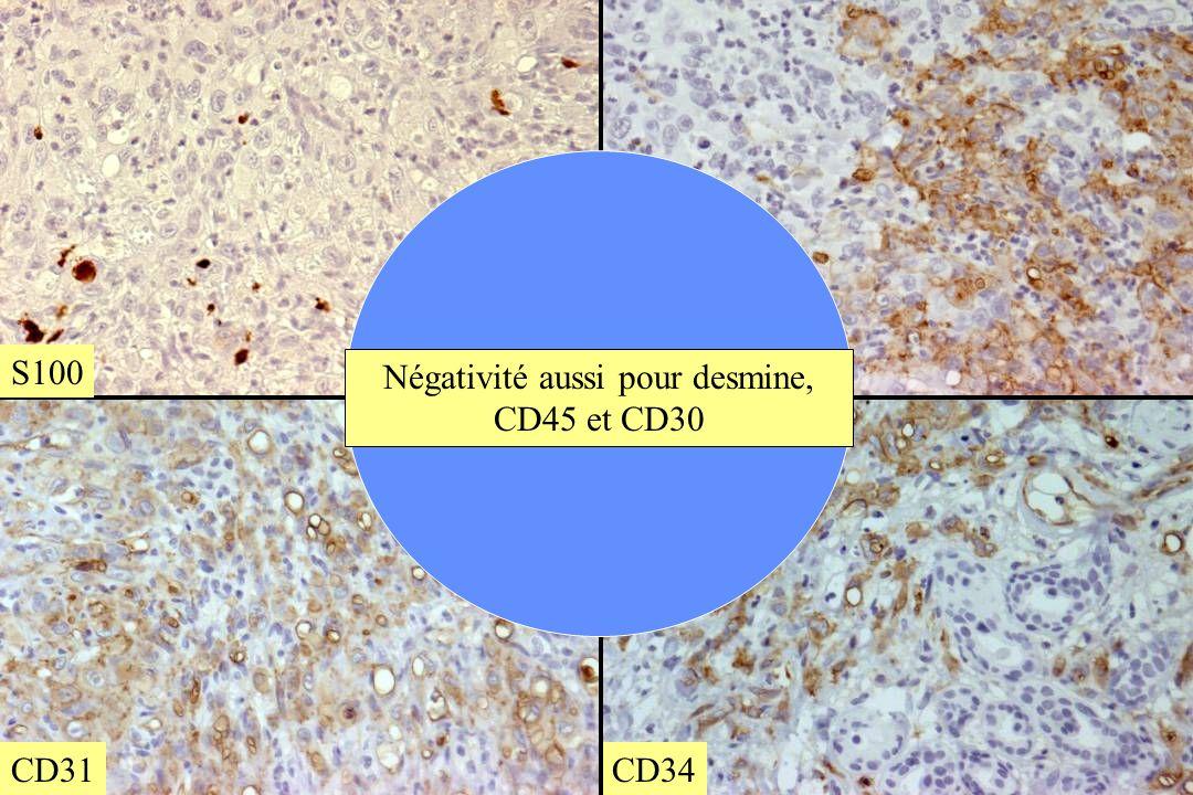Négativité aussi pour desmine, CD45 et CD30