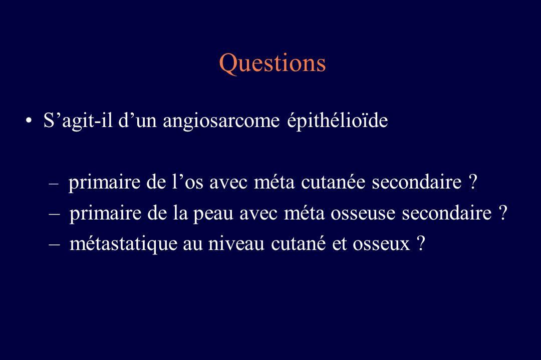 Questions S'agit-il d'un angiosarcome épithélioïde