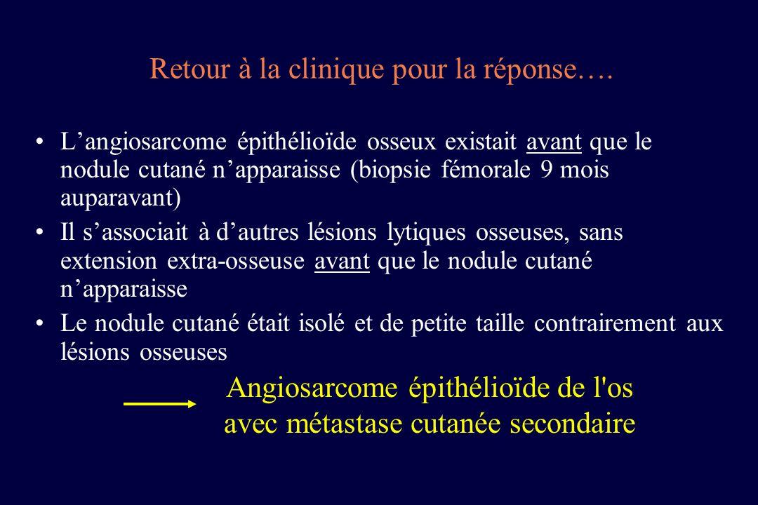 Angiosarcome épithélioïde de l os avec métastase cutanée secondaire
