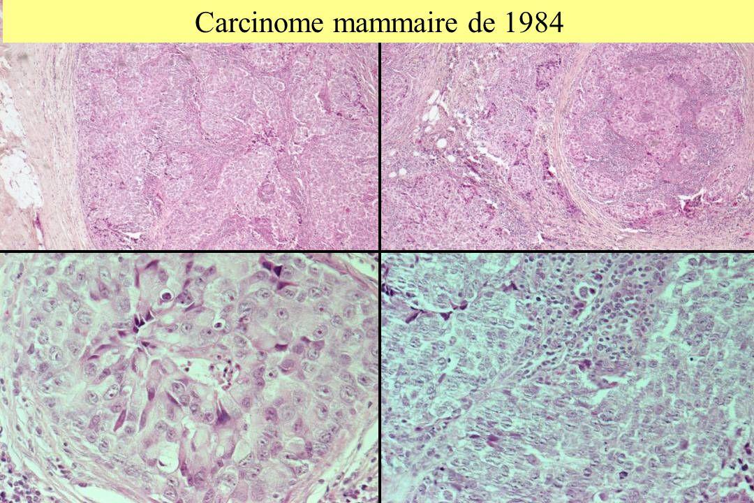 Carcinome mammaire de 1984