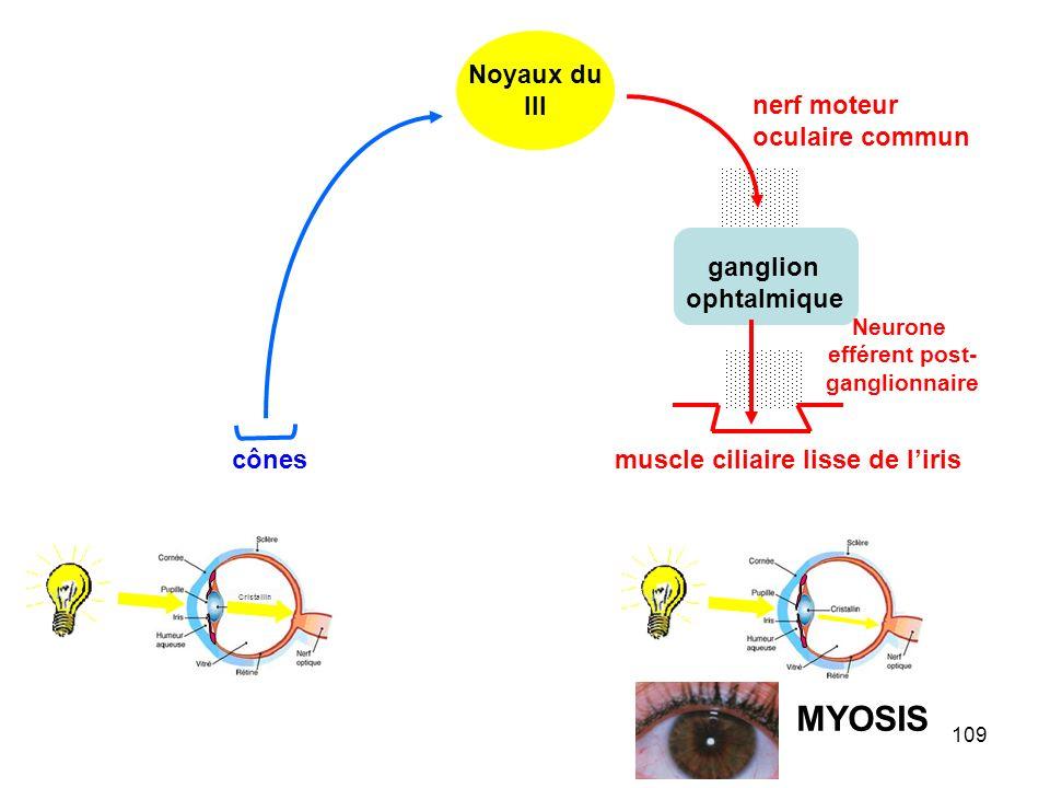 MYOSIS Noyaux du III nerf moteur oculaire commun ganglion ophtalmique