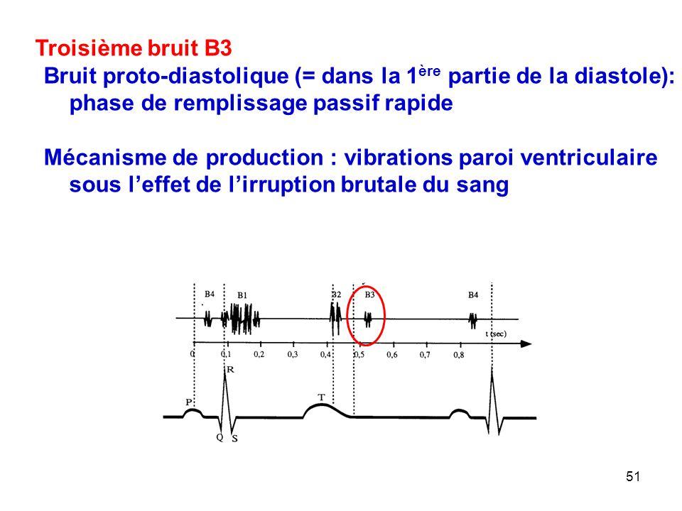 Troisième bruit B3 Bruit proto-diastolique (= dans la 1ère partie de la diastole): phase de remplissage passif rapide.