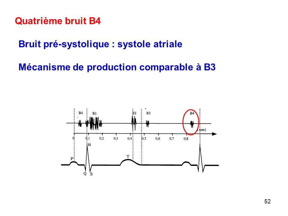 Quatrième bruit B4 Bruit pré-systolique : systole atriale Mécanisme de production comparable à B3