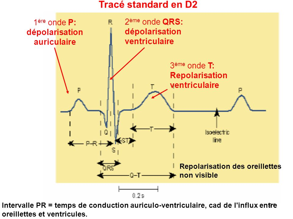 Tracé standard en D2 1ère onde P: dépolarisation 2ème onde QRS: