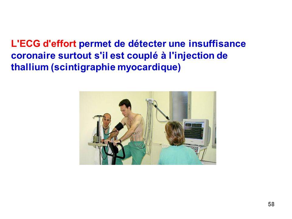 L ECG d effort permet de détecter une insuffisance coronaire surtout s il est couplé à l injection de