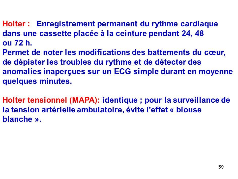 Holter : Enregistrement permanent du rythme cardiaque dans une cassette placée à la ceinture pendant 24, 48