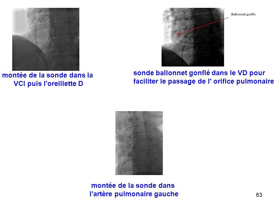 montée de la sonde dans la l artère pulmonaire gauche