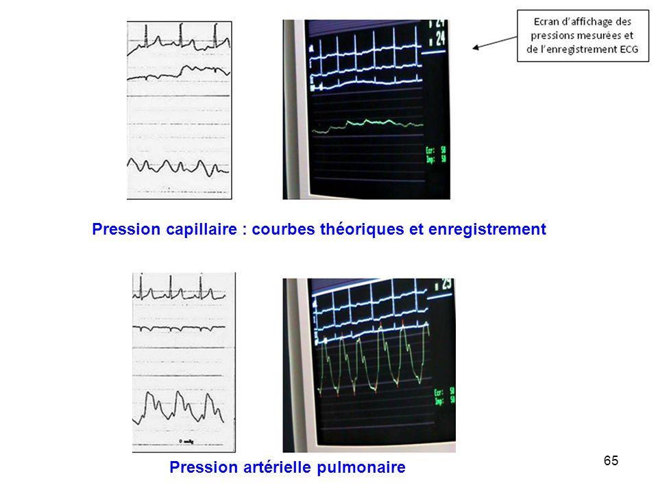 Pression capillaire : courbes théoriques et enregistrement