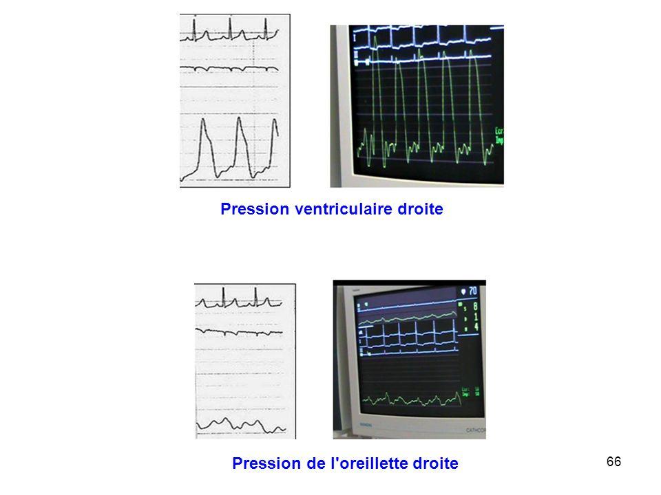 Pression ventriculaire droite