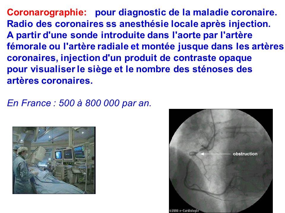 Coronarographie: pour diagnostic de la maladie coronaire.