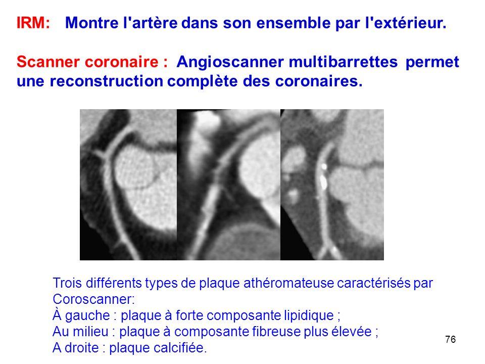 IRM: Montre l artère dans son ensemble par l extérieur.