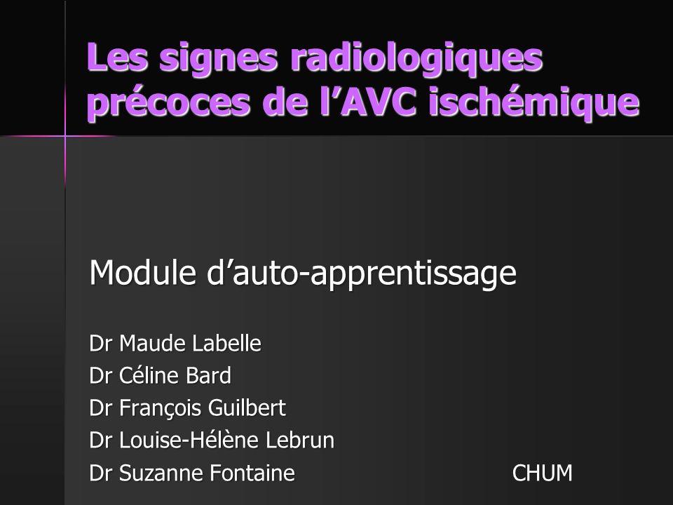 Les signes radiologiques précoces de l'AVC ischémique