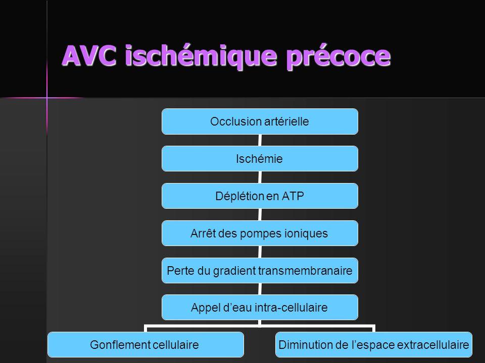 AVC ischémique précoce