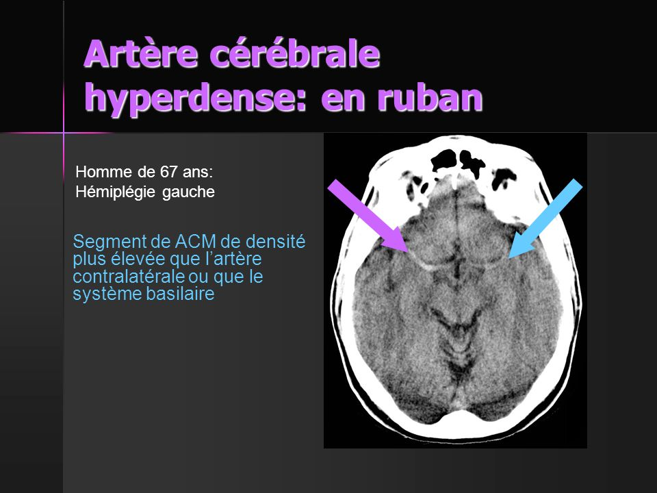 Artère cérébrale hyperdense: en ruban
