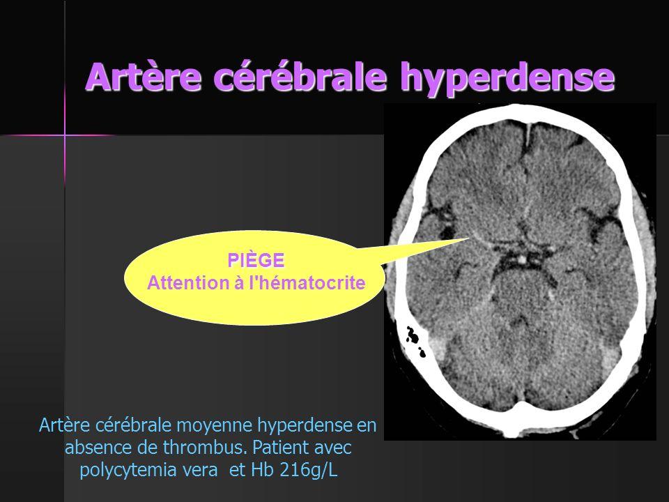 Artère cérébrale hyperdense