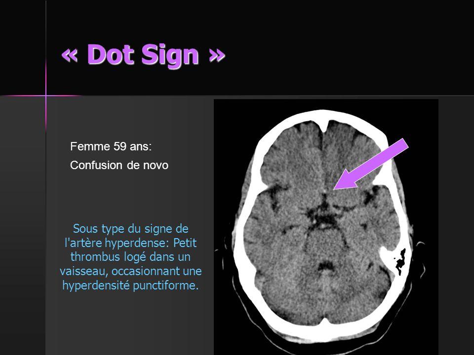 « Dot Sign » Femme 59 ans: Confusion de novo
