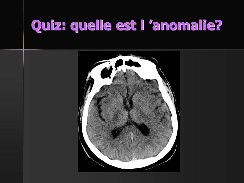 Quiz: quelle est l 'anomalie